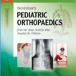 Pediatrics Orthopedics 2013