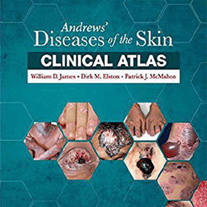 Diseases of the Skin Clinical Atlas 2017