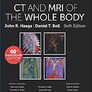 CT and MRI of Whole Body 2016