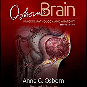 2018 Osborn s Brain 2 vol