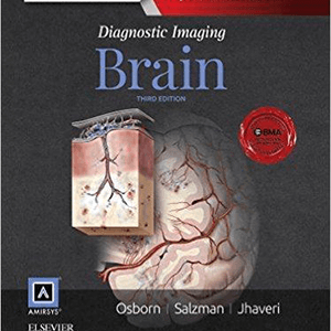DIAGNOSTIC IMAGING BRAIN 2 Vol 2016